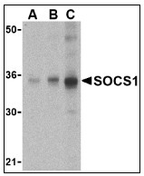 AP08926PU-N - SOCS1