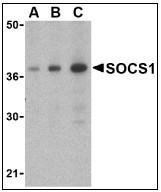 AP08927PU-N - SOCS1