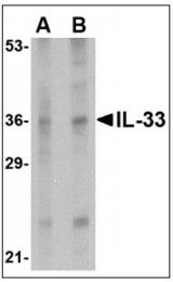 AP08936PU-N - Interleukin-33 (IL33)