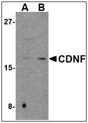 AP08950PU-N - CDNF
