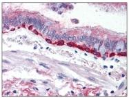 AP08920PU-N - CD333 / FGFR3