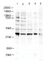R1502P - RNF2