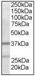 AP08959PU-N - ARPC1B / ARC41