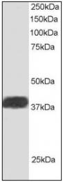 AP08963PU-N - NIF3L1