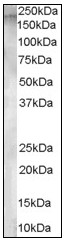 AP08973PU-N - CD249 / Glutamyl aminopeptidase