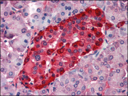 AP08891PU-N - Transthyretin / Prealbumin