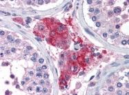 AP08980PU-N - Acylphosphatase 1 (ACYP1)