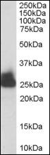 AP08894PU-N - Triosephosphate isomerase (TPI1)