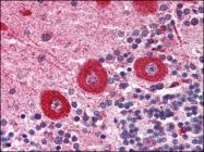 AP08902PU-N - IP3 receptor 1 / ITPR1