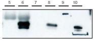 AP09086SU-N - CYTIP / PSCDBP