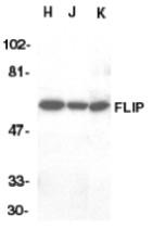 AP09143PU-N - CFLAR / Casper / I-FLICE
