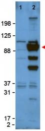 AP09160PU-S - Glypican-1 / GPC1