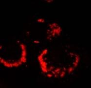 AP09090SU-N - SARS ORF1ab polyprotein