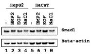 AP09418PU-N - SMAD1