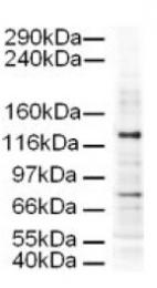 AP09210PU-N - AP3 complex subunit delta-1