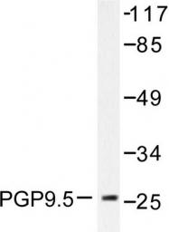 AP06285PU-N - UCHL1 / PGP9.5