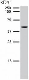 BM562S - Cytokeratin 8
