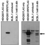 AP09401PU-N - Herpes Virus Type 8 / HHV8