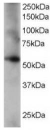 AP16236PU-N - Coronin-1C