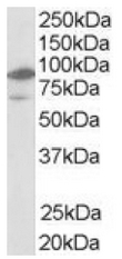 AP16280PU-N - NR1H2