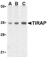 AP09158PU-N - TIRAP
