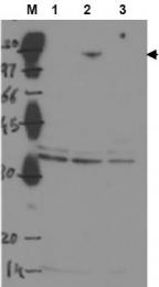 AP09148PU-N - TP53BP2