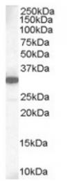 AP16241PU-N - MCL1