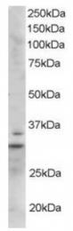 AP16243PU-N - LIME1
