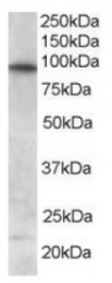 AP16245PU-N - FOXO3 / FKHRL1