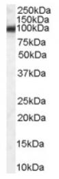 AP16504PU-N - Endoplasmin / HSP90B1 / TRA1
