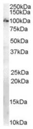 AP16511PU-N - Anillin / ANLN
