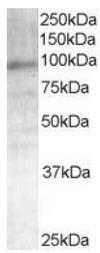 AP16257PU-N - Androgen receptor
