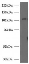 AP16521PU-N - UNC13D