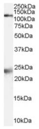 AP16522PU-N - NMDA Receptor 1