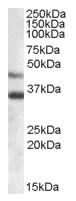 AP16692PU-N - Arylsulfatase B