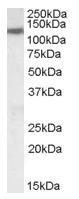 AP16688PU-N - SLC12A6