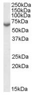 AP16684PU-N - Steryl-sulfatase