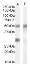 AP16676PU-N - IGFBP3