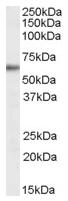 AP16607PU-N - G6PD