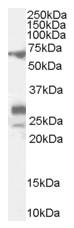 AP16605PU-N - Sal-like protein 4 (SALL4)