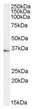 AP16604PU-N - Tachykinin receptor 1 (TACR1)