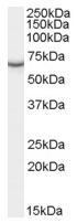 AP16602PU-N - PCK1 / PEPCK1