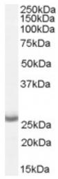 AP16569PU-N - APH1A