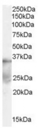 AP16395PU-N - DAZL