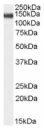 AP16588PU-N - STAG2 / Stromal antigen 2