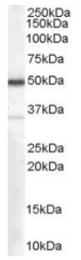 AP16498PU-N - Chromogranin A