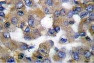 AP06201PU-N - Cytokeratin 19