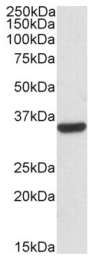 AP09435PU-N - Calponin-2