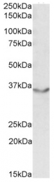 AP09442PU-N - CD322 / JAM2