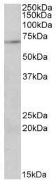 AP09443PU-N - PRMT5